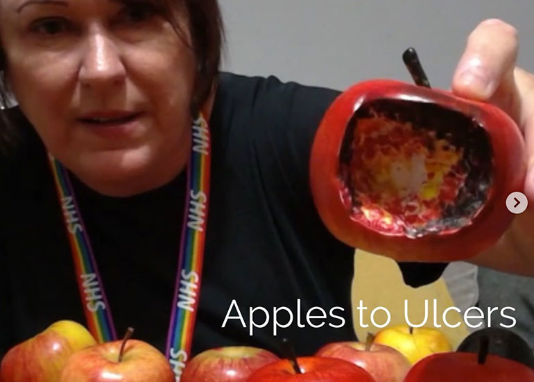 Apples to Ulcer Analogy