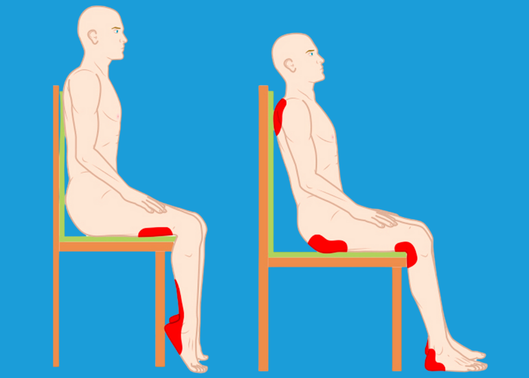 Pressure Ulcers and seating