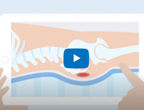 Time to Move – Pressure Ulcer Video