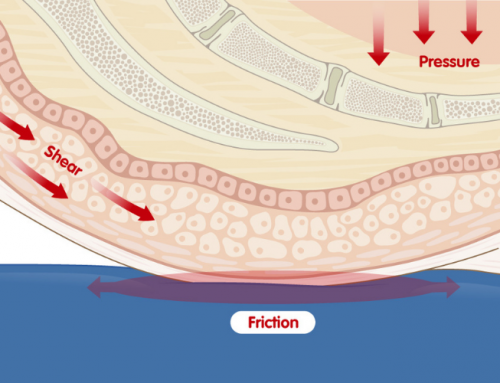 How Friction and Shear Cause Pressure Ulcers