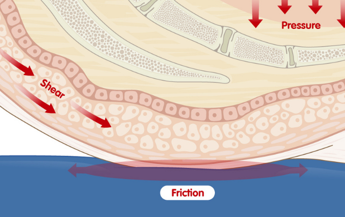 Shear and Friction on a seated body